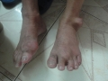 Bí mật bài thuốc chữa bệnh Gút (gout) hiệu quả