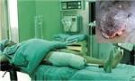 Quả báo bệnh tật bị cắt dần tay chân do thích ăn thịt rùa