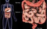 99% các bệnh ung thư là do chúng ta tự đầu độc đại tràng của mình