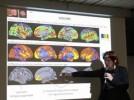 Phép thiền định có thể ngăn ngừa bệnh kém trí nhớ Alzheimer